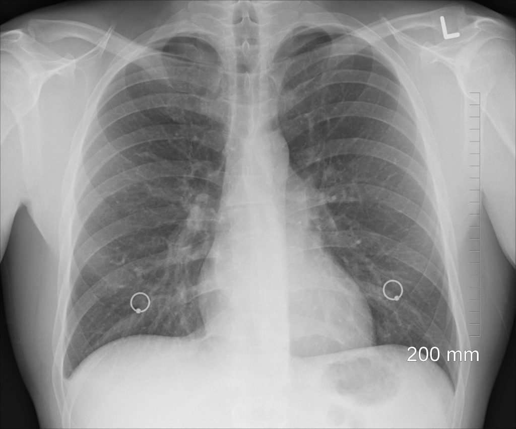 Hse Has Launched An Inspection Focus On Occupational Lung Disease 8